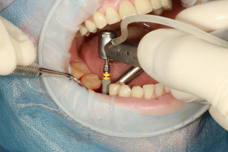 Zakaj so zobni implantati najboljša izbira za manjkajoče zobe?