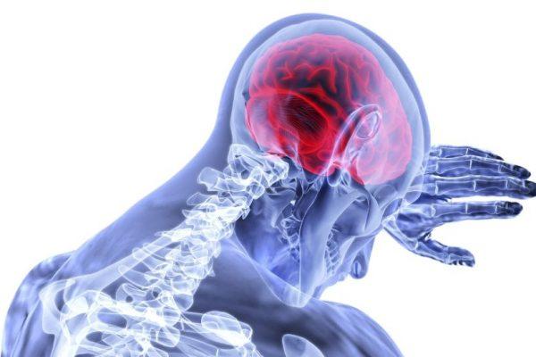 možganska kap