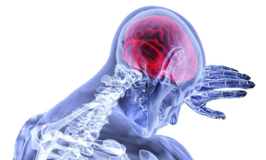 Možganska kap – vse kar morate vedeti